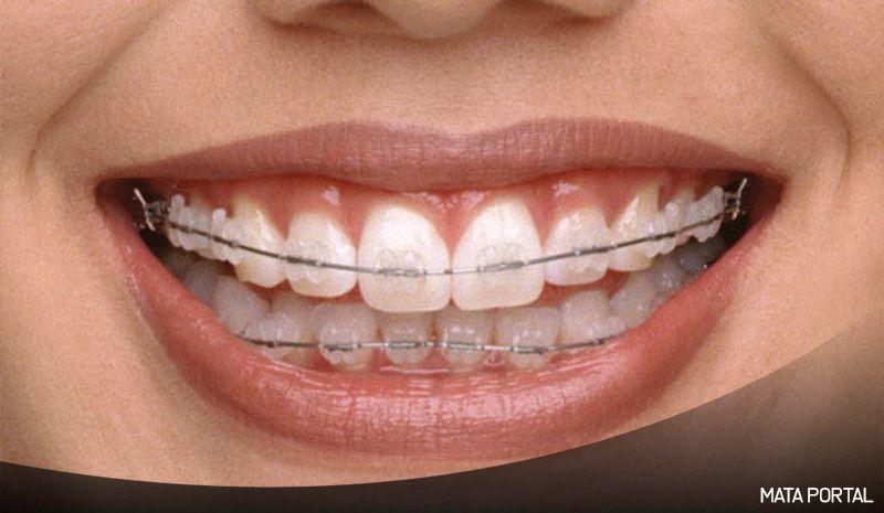 Lima hal wajib diketahui saat menggunakan behel braces