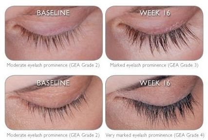 Latisse Eyelash CA | Long thick eyelashes, Botox fillers and