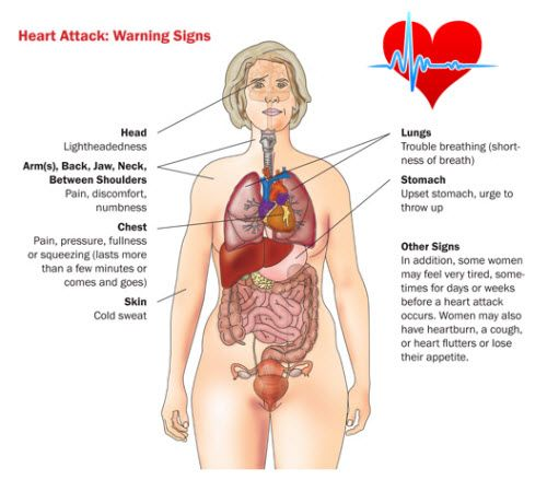 Heart Attack Diagram It S Not Just A Man S Disease Workout Motivation Women Womens Health Magazine Womens Health