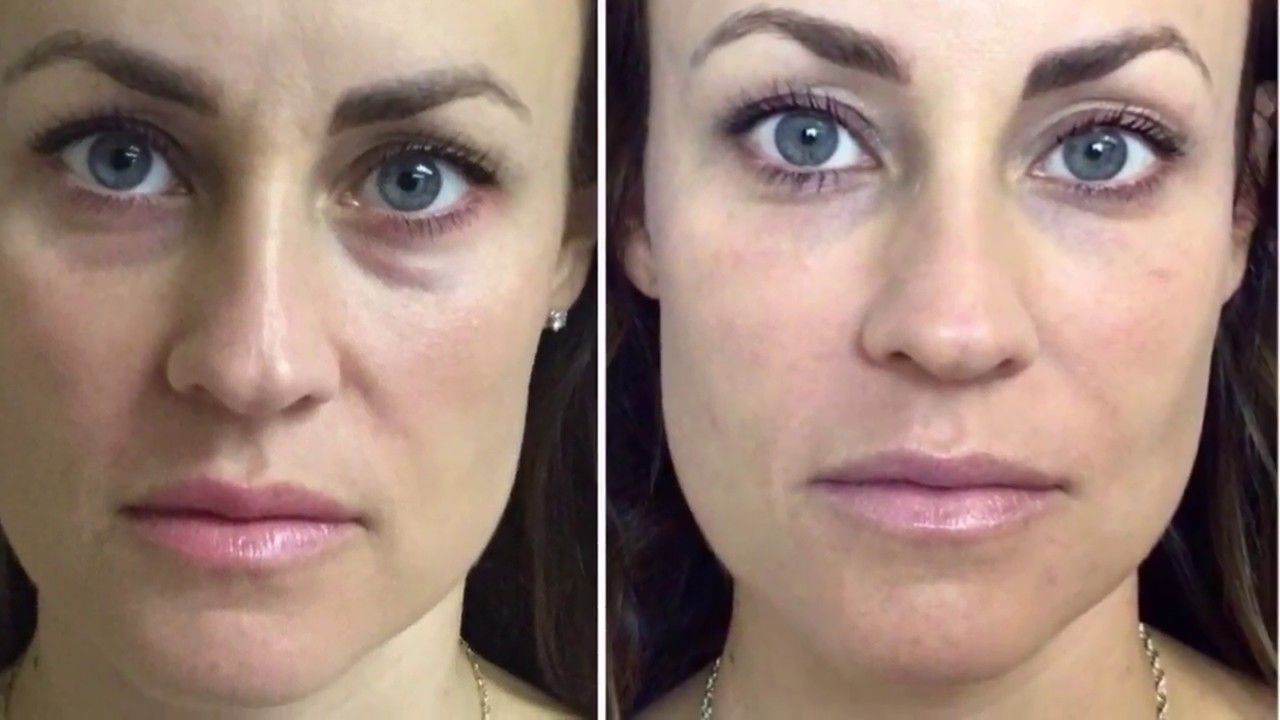 Restylane Dermal Filler Under Eyes~ Tear Trough - YouTube | Beauty