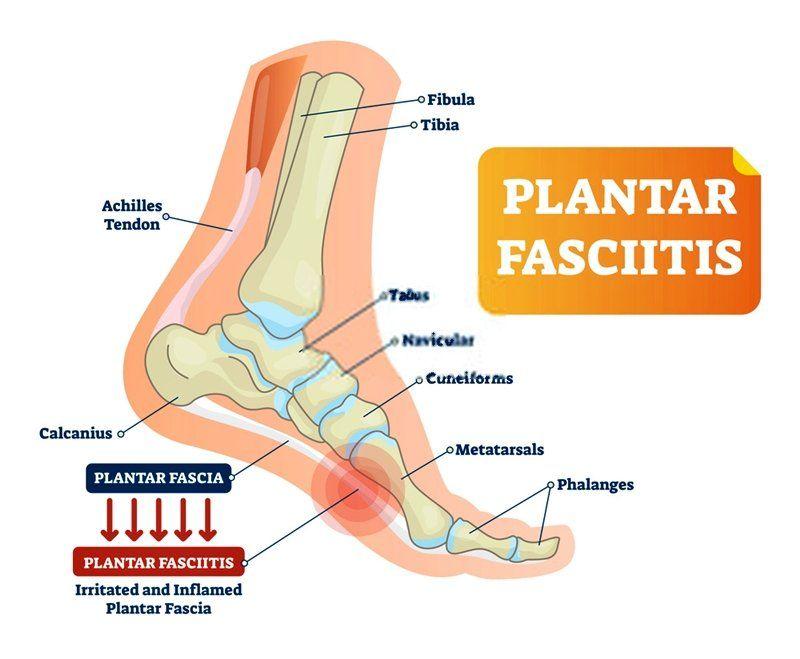 Walking Fitness Plantar Fasciitis Plantar Fasciitis Symptoms