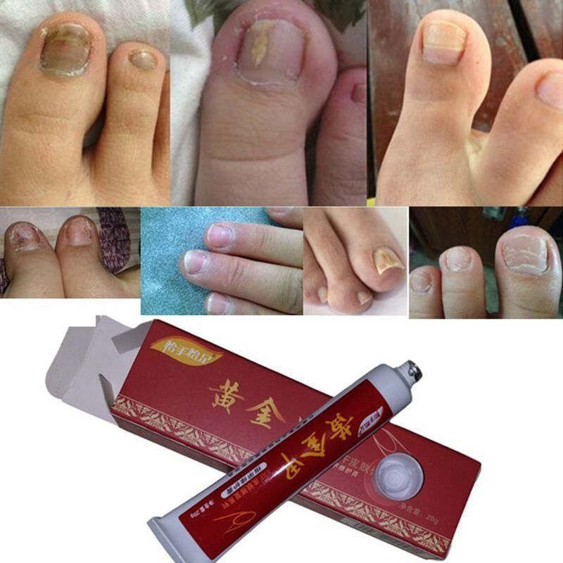 1pcs Nail Treatment Onychomycosis Paronychia Anti Fungal Nail ...