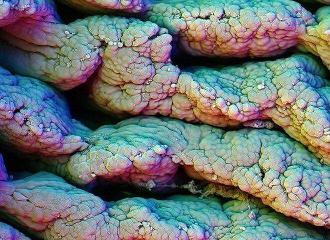 Что будет, если посмотреть на наше тело под микроскопом?-ЖЕЛУДОК | Тело