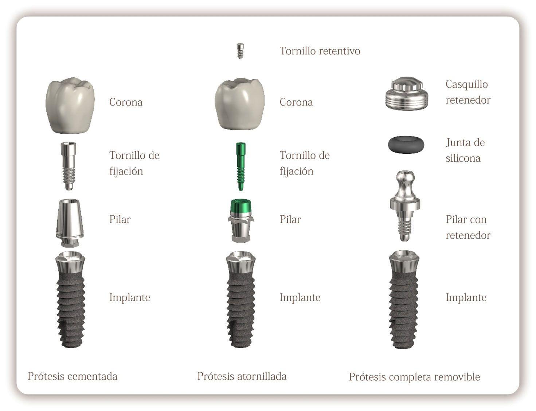 Qué son los implantes dentales? | Odonto | Pinterest | Implantes ...