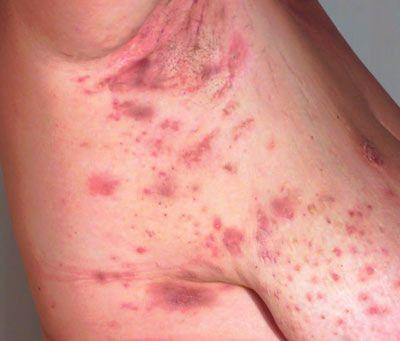 hidradenitis suppurativa | Hidradenitis suppurativa