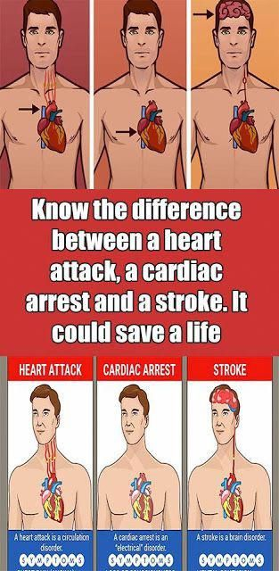 Know The Difference Between A Heart Attack A Cardiac Arrest  A Stroke It Could Save A Life