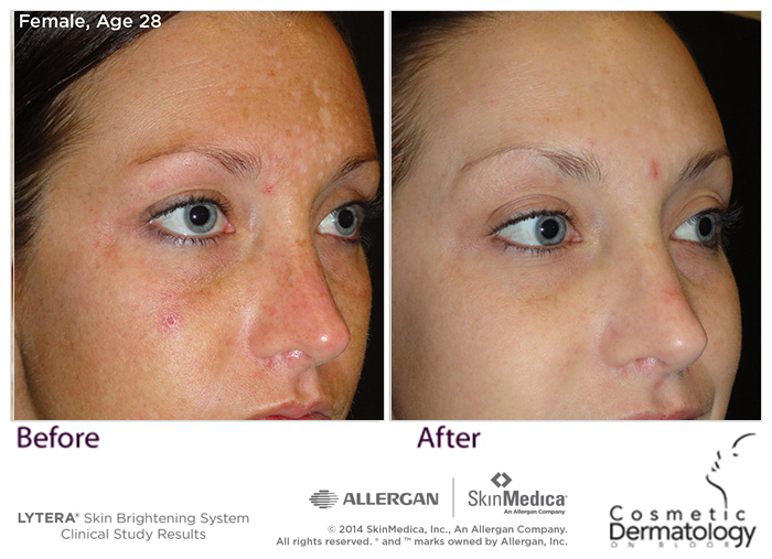Lytera Before And After Results Skin Medica Luminous Skin Skin Care Guide