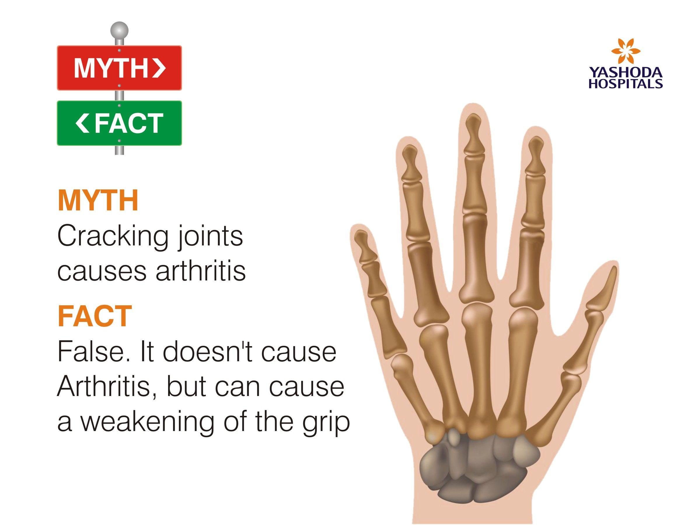 #MythFact #YashodaHospitals