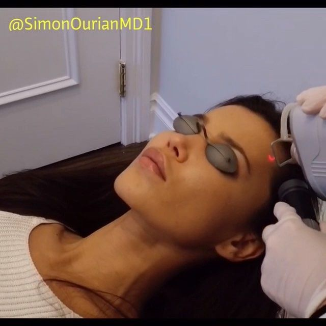 Coolaser treatment for the removal of sundamage, discoloration and skin tightening.  Thank you #svetabily for letting us film and post this.  Россия, земля из самых красивых женщин в мире.