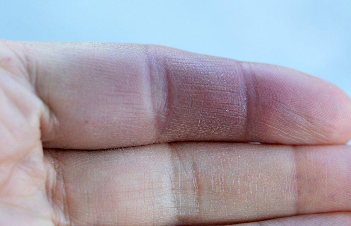 Paroxysmal Hand Hematoma Wikipedia Hands Medicine Journal Rheumatoid Arthritis