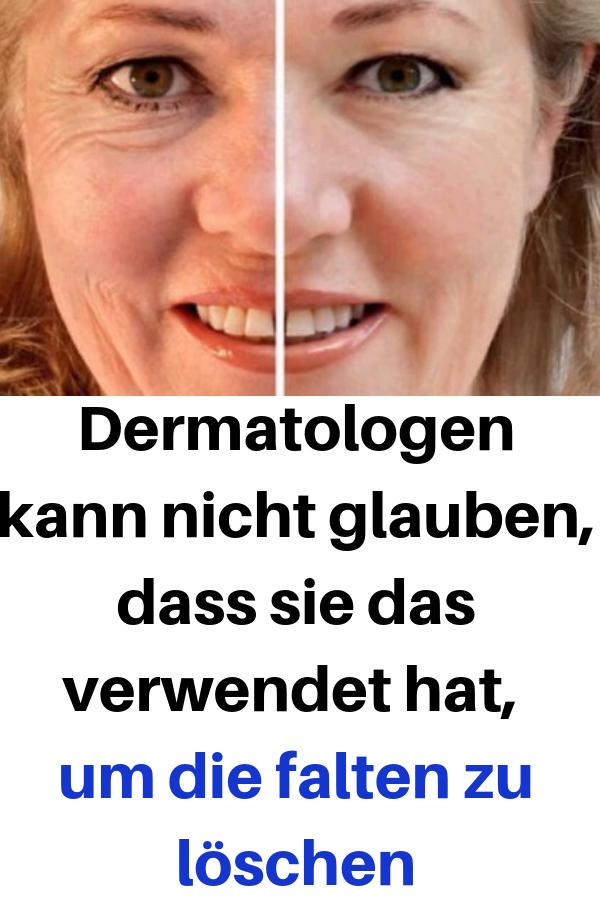 Dermatologen können nicht glauben, dass sie das benutzt hat, um die Falten zu lösen.