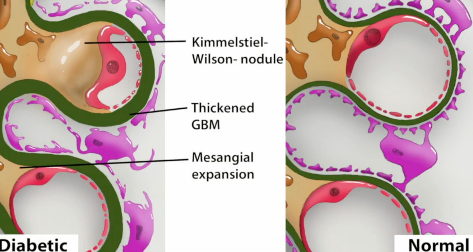 enfermedad de kimmelstiel-wilson emedicina diabetes