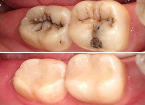 Composite Fillings In New Delhi White Tooth Coloured Fillings Dental Composite Resin Teeth Fillings In Delhi Odontologia Ortodoncia Cuidado Dental