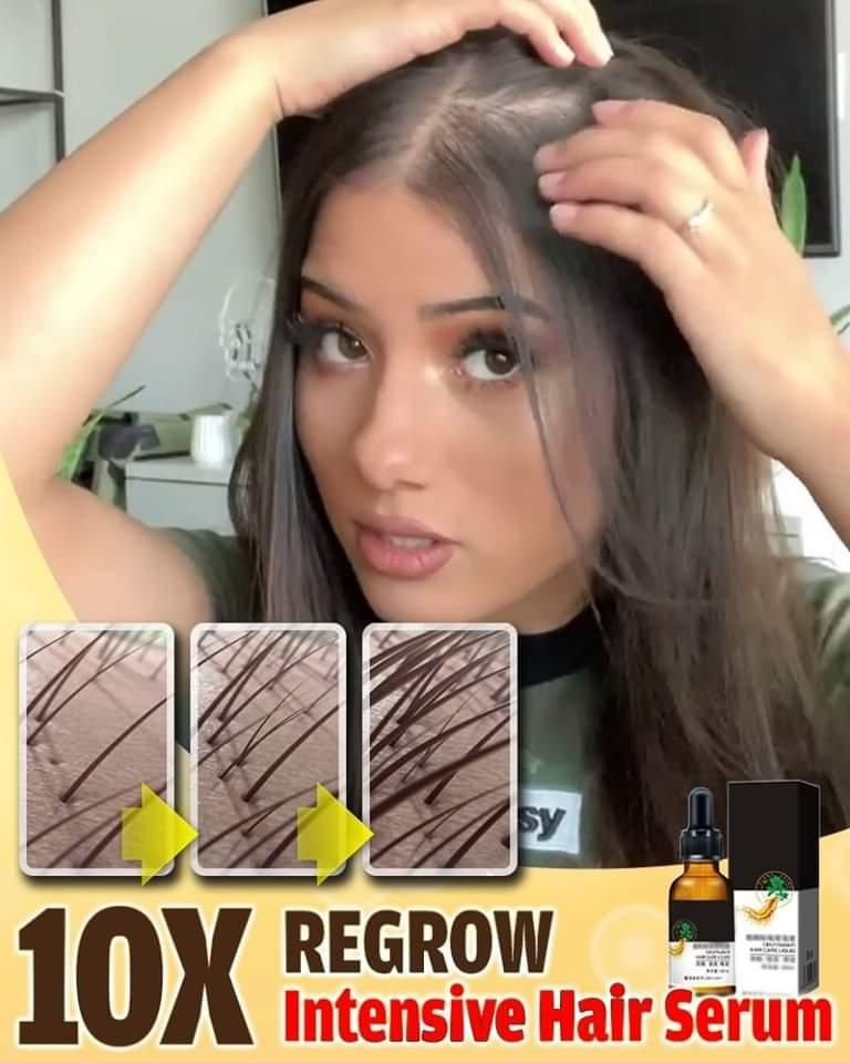 ✨Accelerate Hair Growth 10X More!💪🏼😍 🔥Strengthen T