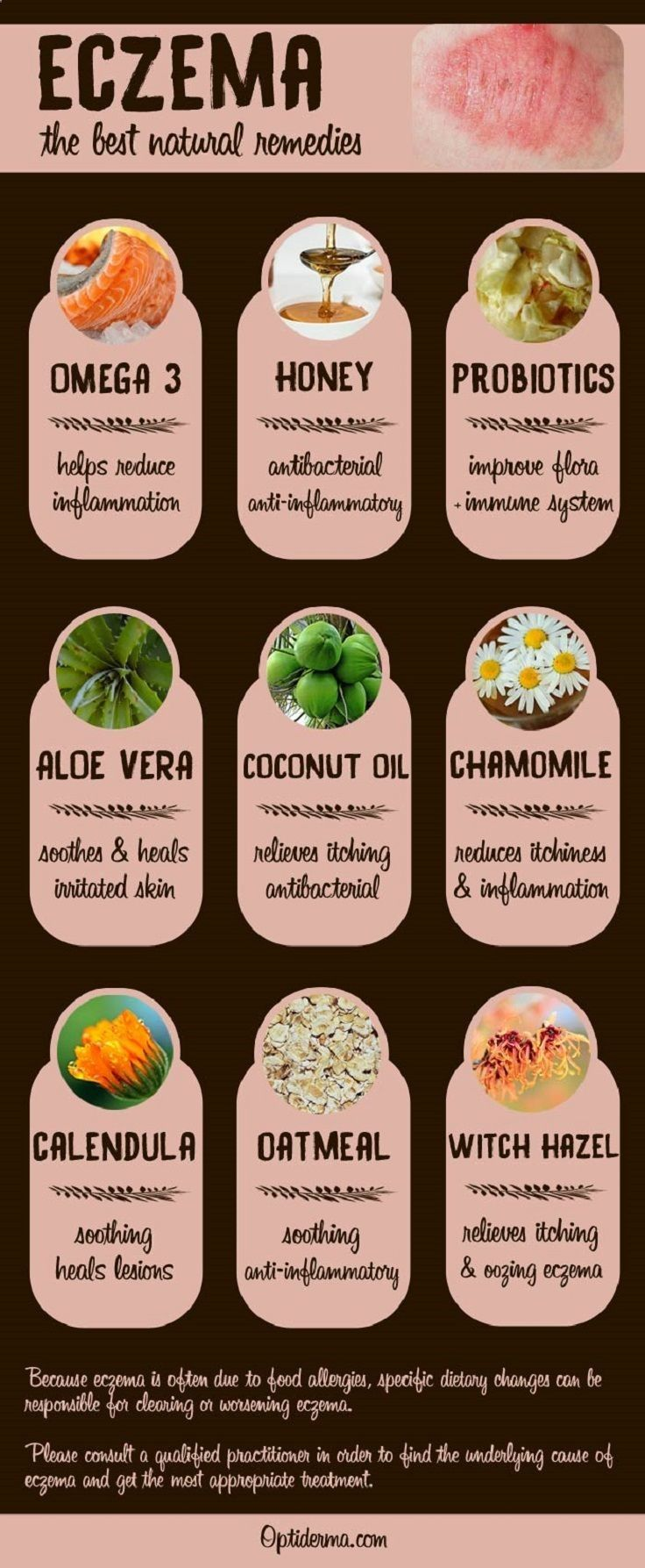 Effective and natural eczema remedies 15 best natural