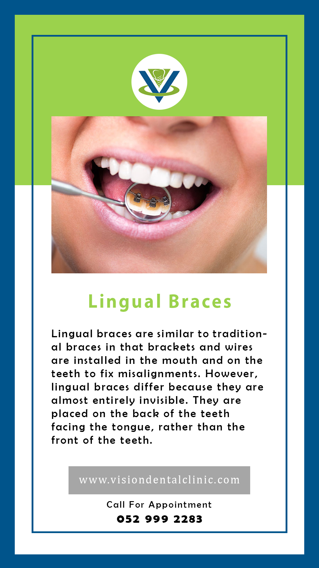 Lingual braces are similar to traditional braces in that brackets and wires are installed in the mouth and on the teeth to fix misalignment. However, lingual braces differ because they are almost entirely invisible. They are placed on the back of the teeth facing the tongue, rather than the front of the teeth.
