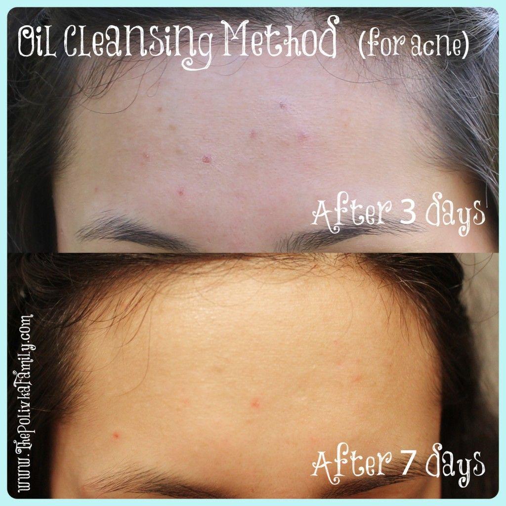 Face cleanser, moisturizer, acne-reducer!