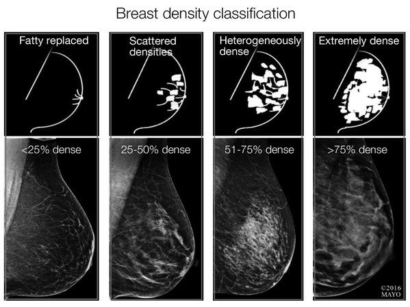 Pin On Breast Imaging