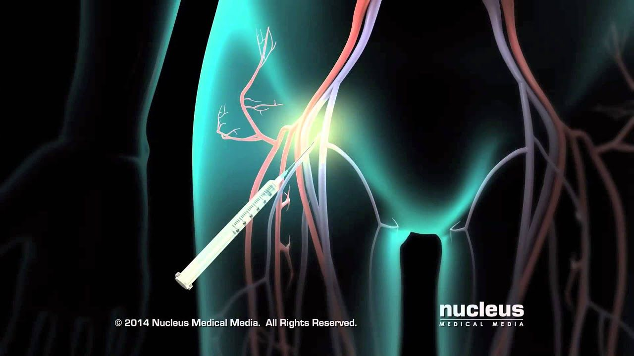 Catheter Ablation in 2020   Catheter. Heart ablation. Medical