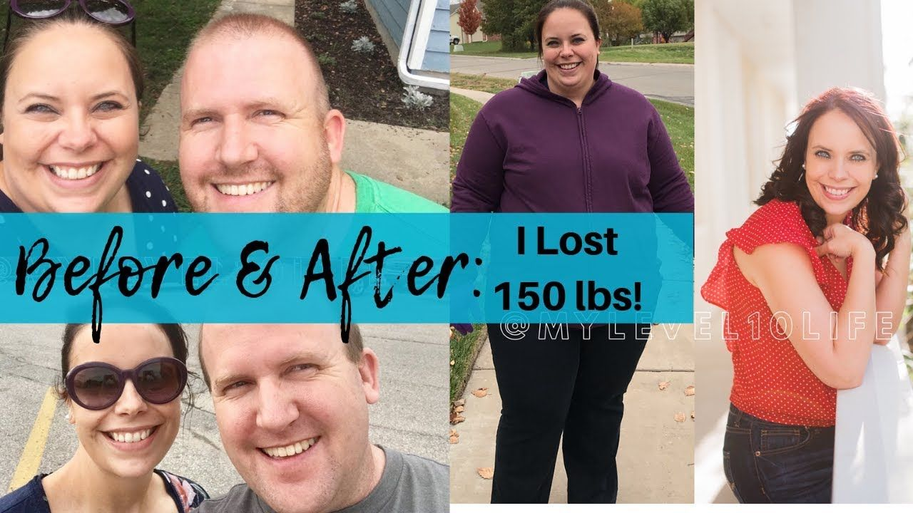 Pin on Gastric Sleeve Surgery (VSG Surgery)