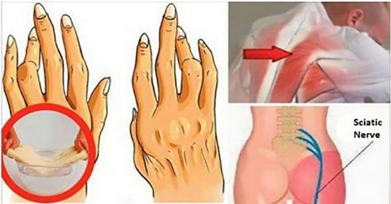 aplicarea artritei deteriorarea meniscului medial al tratamentului conservator al genunchiului
