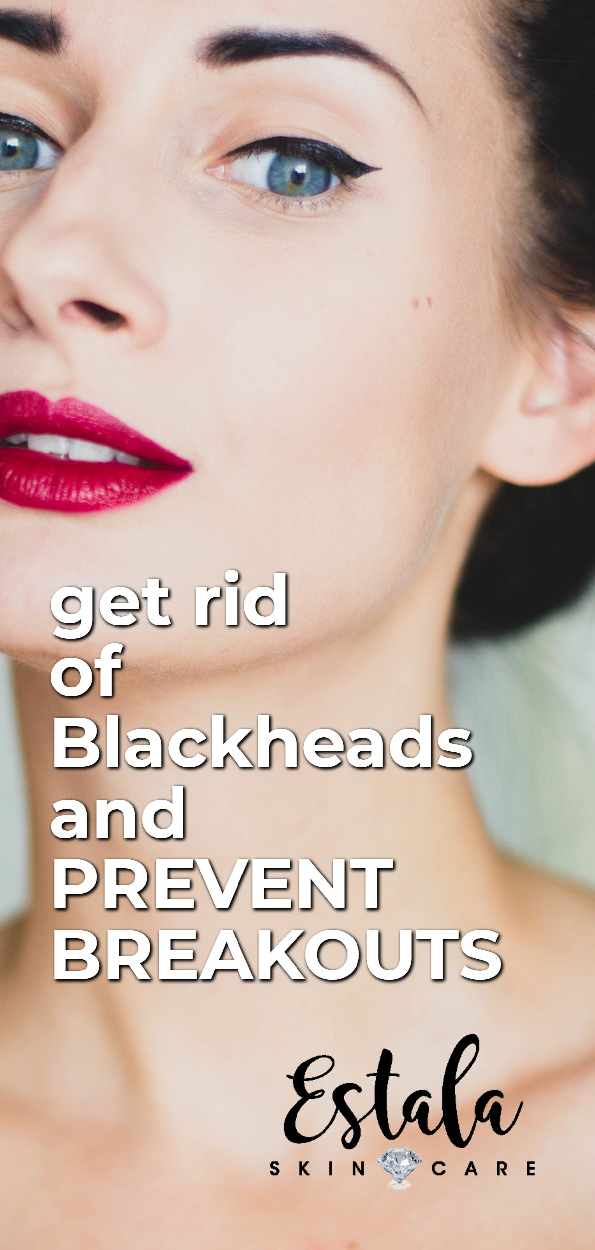 Get rid of blackheads and prevent breakouts try this acne