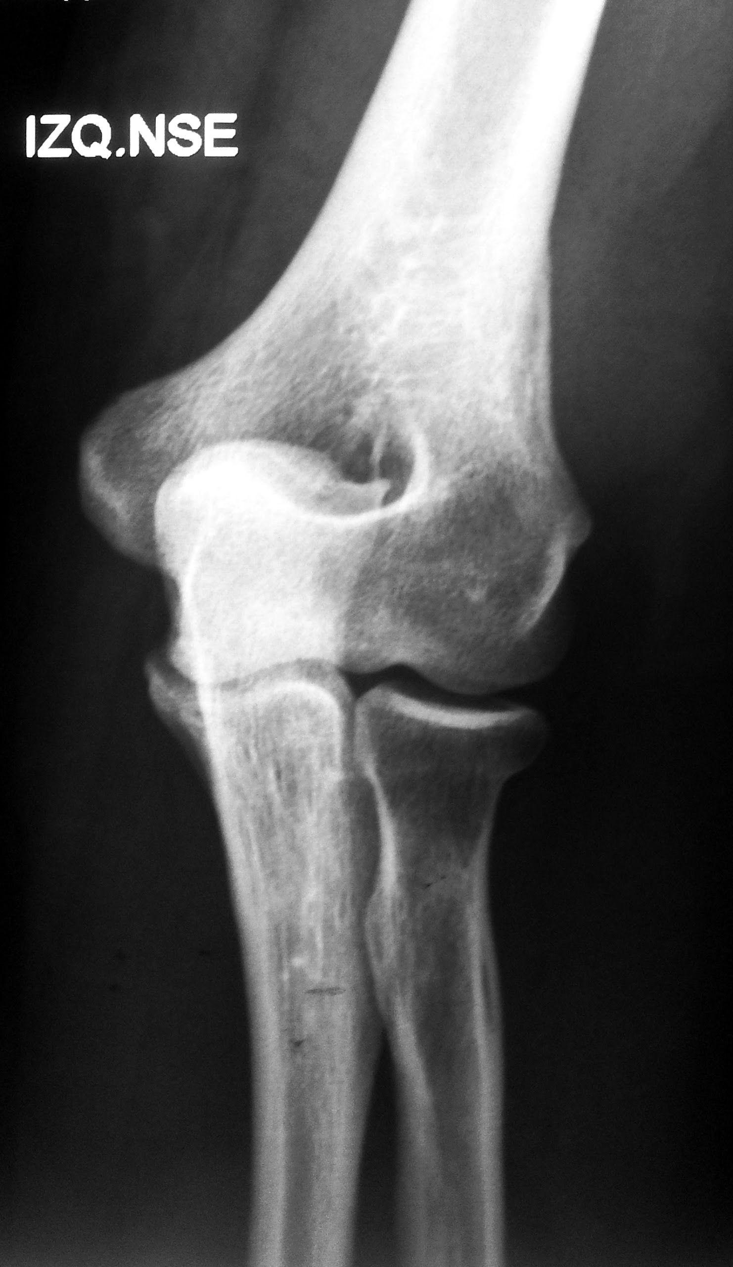 Radiografía del codo, perfil: -Interpretar imágenes estándar de diagnóstico del codo