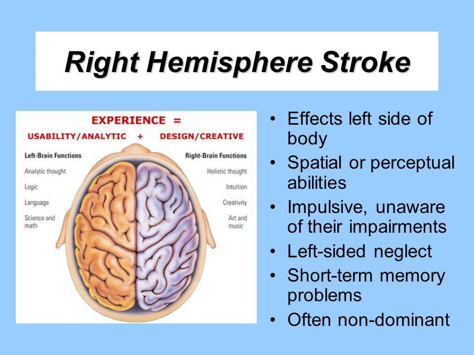 Right Hemisphere Stroke Symptoms And Treatments Dr Kashi Heart