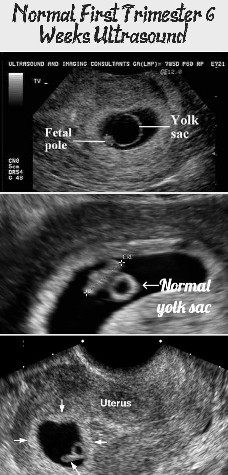 Normal first trimester 6 weeks ultrasound