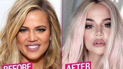Khloe Kardashian Unrecognizable After Massive Plastic Surgery Makeover