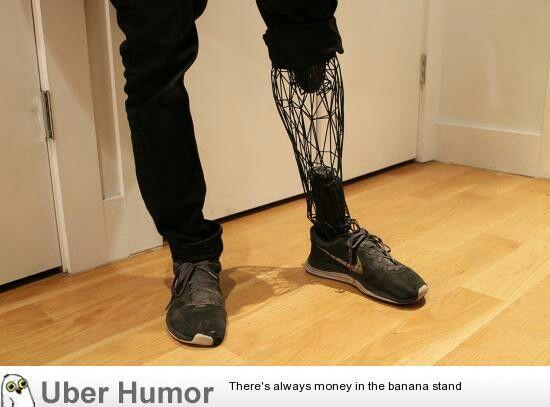 3D printed prosthesis