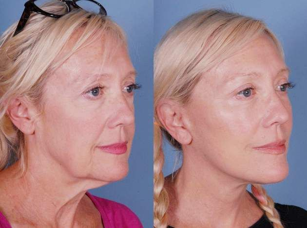 what is a mini face lift