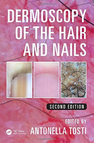 Dermoscopy of the Hair and Nails, Second Edition: Amazon.co.uk: Antonella Tosti: 9781482234053: Books