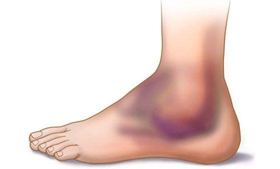 Как лечить ушибы ноги в домашних условиях, помощь при сильном ...