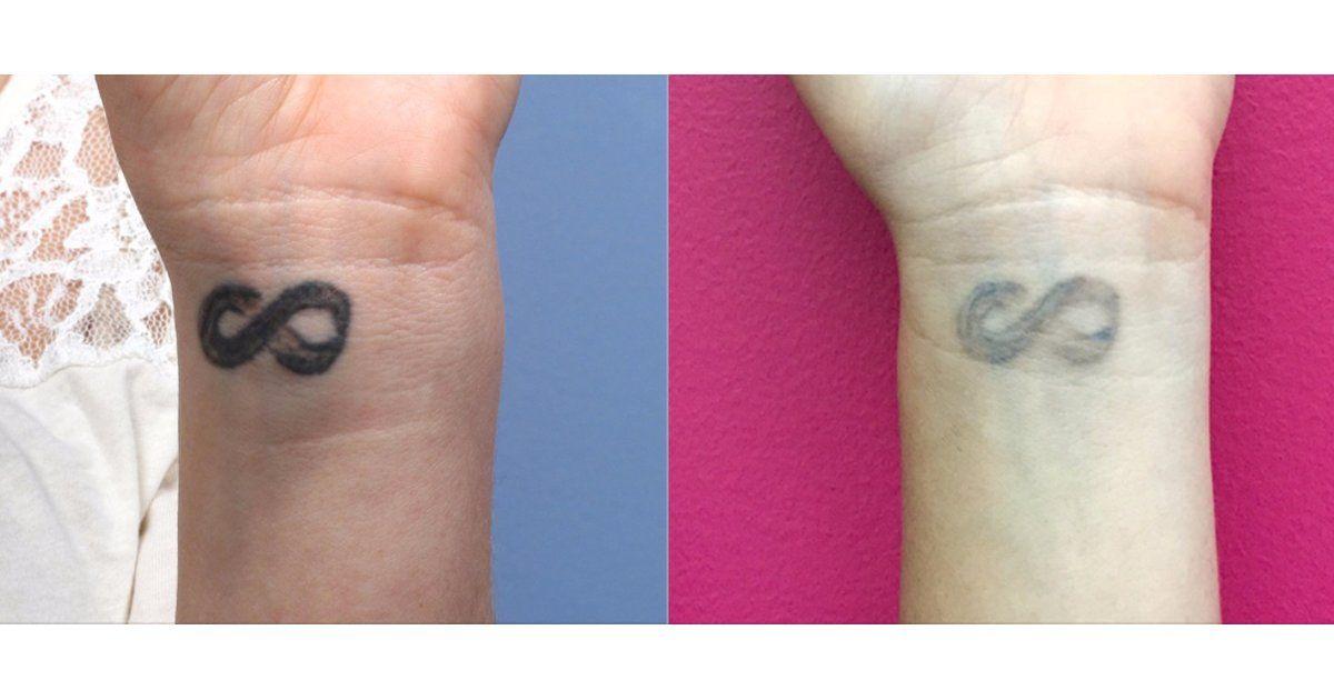 Laserless tattoo removal remove tatoo removetatoo