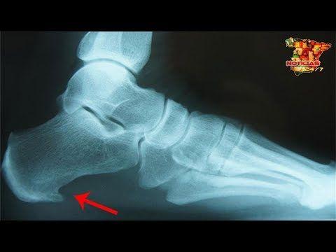 dolor de la planta del pie al levantarse
