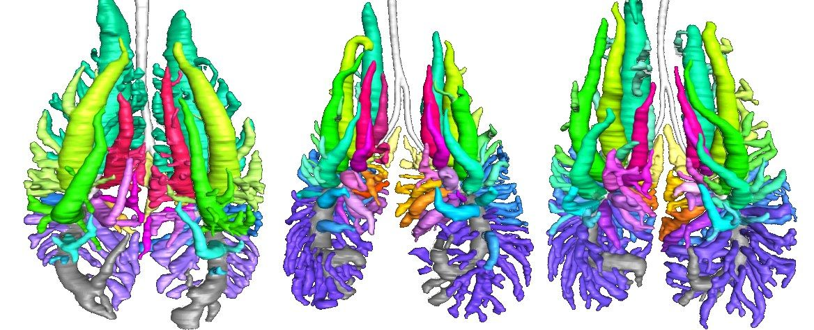 Pulmonary anatomy in the Nile crocodile and the evolution