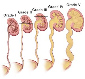 Cross Section Of Five Kidneys And Ureters Showing Grades Of Vesicoureteral Reflux Grade One Pediatric Surgery Pediatric Nursing Diagnostic Medical Sonography