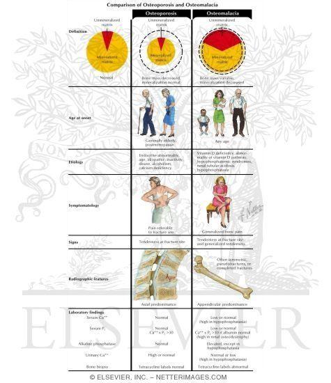 27++ What is osteomalacia vs osteoporosis info