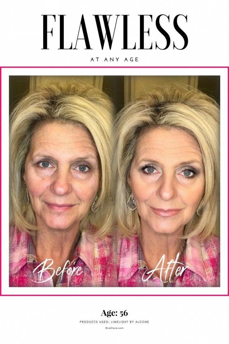PsoriasisTreatmentNew BestFaceCream Top skin care