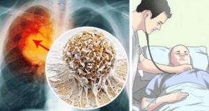 ¡Tiembla La Medicina! El Secreto Más Grande De La Oncología Queda Expuesto, Muy Vergonzoso…