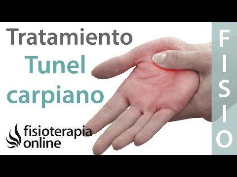 síndrome del túnel carpiano tratamiento naturista