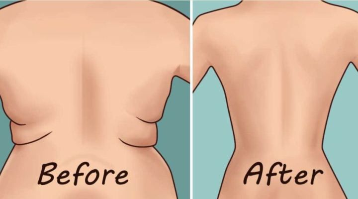 2de660bc4f97a Eliminate Back Fat and Underarm Flab With 4 Quick Exercises ...
