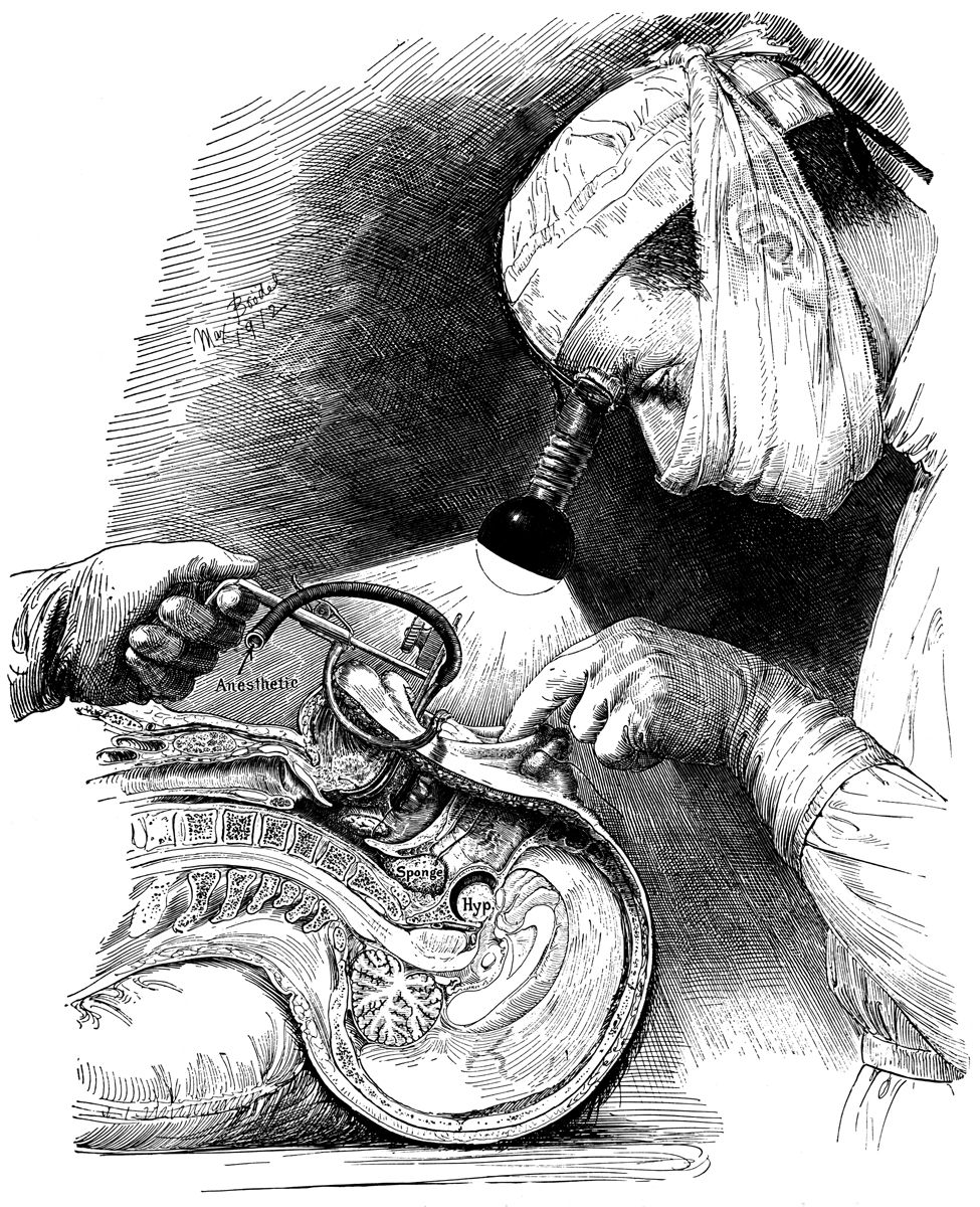 Harvey Cushing By Max Brodel The Father Of American Surgical