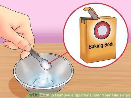 How To Remove A Splinter Under Your Fingernail Splinter Removal Fingernails Nail Remedies