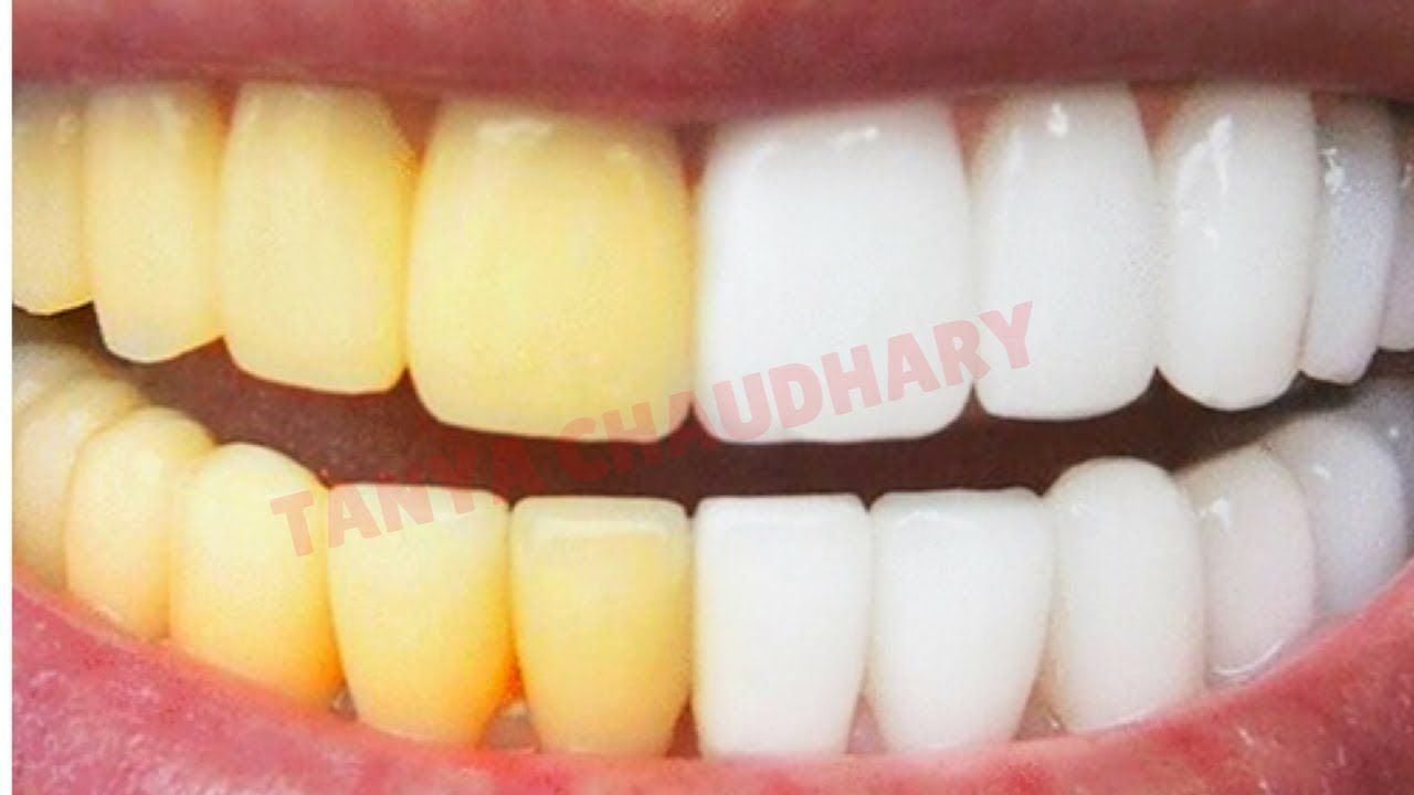 Teeth Whitening At Home In Just 3 Minutes How To Whiten Teeth At