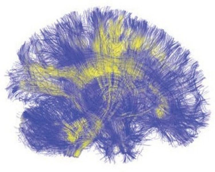 Image shows white matter in the brain.