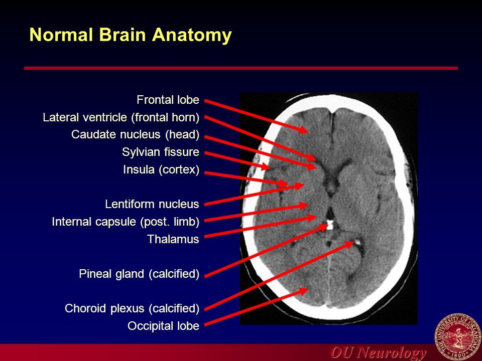 Axial View Of A Head Computed Tomography (CT) Scan Of Pineal Gland ...
