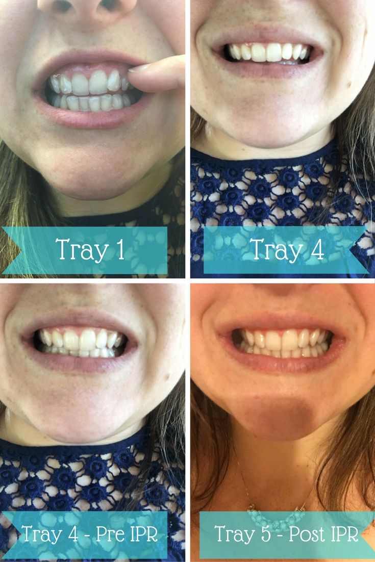 Difference Smile Direct Club  Clear Aligners