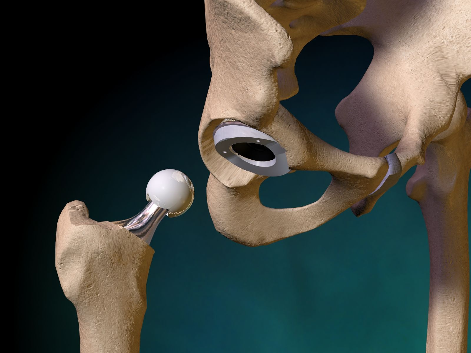 total hip replacement procedure pdf